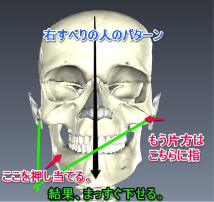 顎関節の歪みを治したら声が出た!