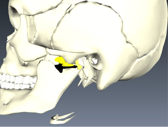 Temporomandibular joint 02